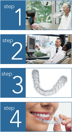 Invisalign Treatment Steps