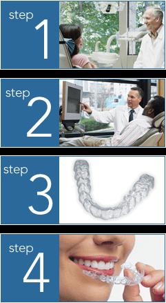 Invisalign Treatment Steps